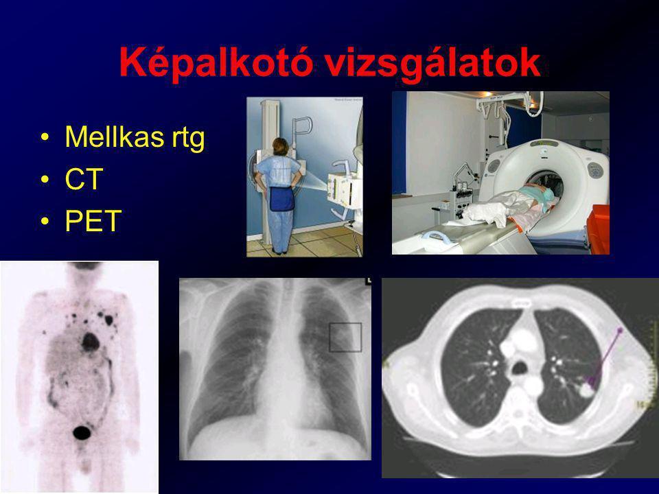 Képalkotó vizsgálatok Mellkas rtg CT PET
