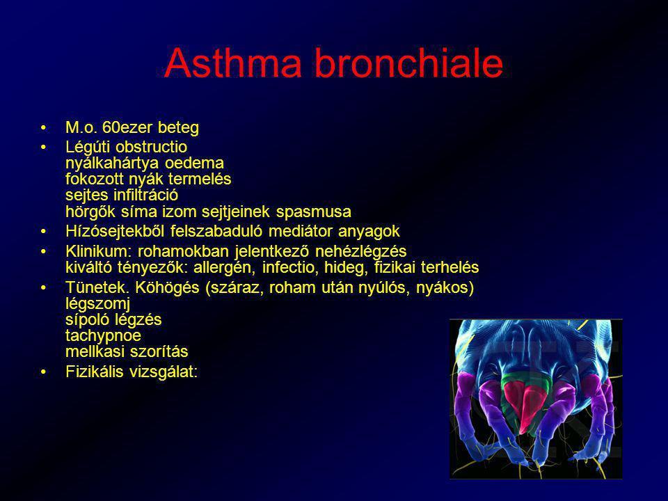 Asthma bronchiale M.o. 60ezer beteg Légúti obstructio nyálkahártya oedema fokozott nyák termelés sejtes infiltráció hörgők síma izom sejtjeinek spasmu