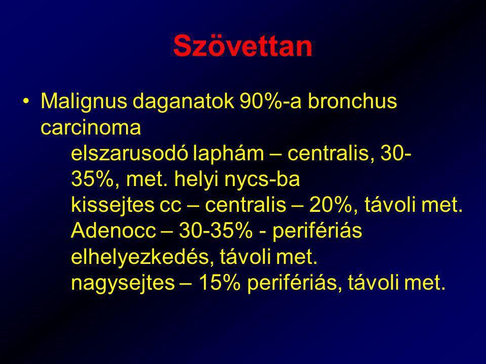 Szövettan Malignus daganatok 90%-a bronchus carcinoma elszarusodó laphám – centralis, 30- 35%, met. helyi nycs-ba kissejtes cc – centralis – 20%, távo