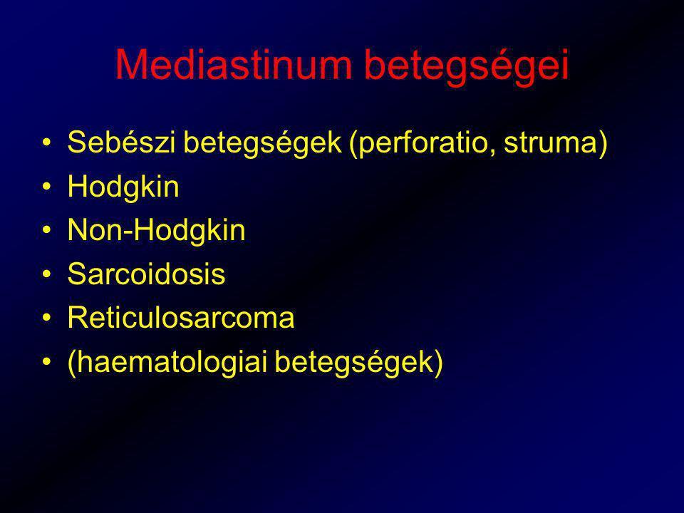Mediastinum betegségei Sebészi betegségek (perforatio, struma) Hodgkin Non-Hodgkin Sarcoidosis Reticulosarcoma (haematologiai betegségek)
