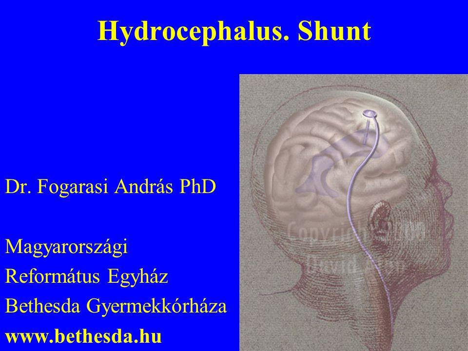 Hydrocephalus.Shunt Dr.