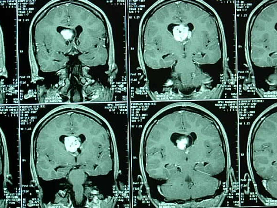 Epilepsziát okozhat Fokozott görcskészség Agyi eltérés Genetikai eltérés Gyakran öröklődik Fejlődési rendellenességek Daganat Agyvérzés Agysérülés Gyu