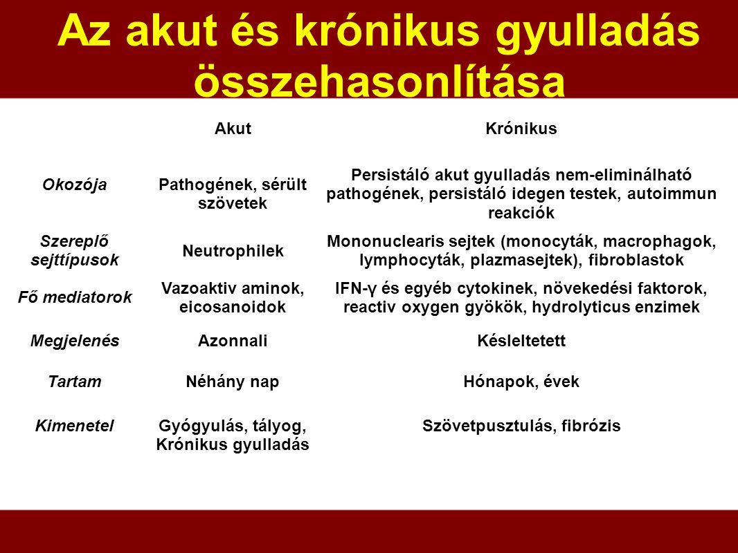 Az akut és krónikus gyulladás összehasonlítása Szövetpusztulás, fibrózisGyógyulás, tályog, Krónikus gyulladás Kimenetel Hónapok, évekNéhány napTartam