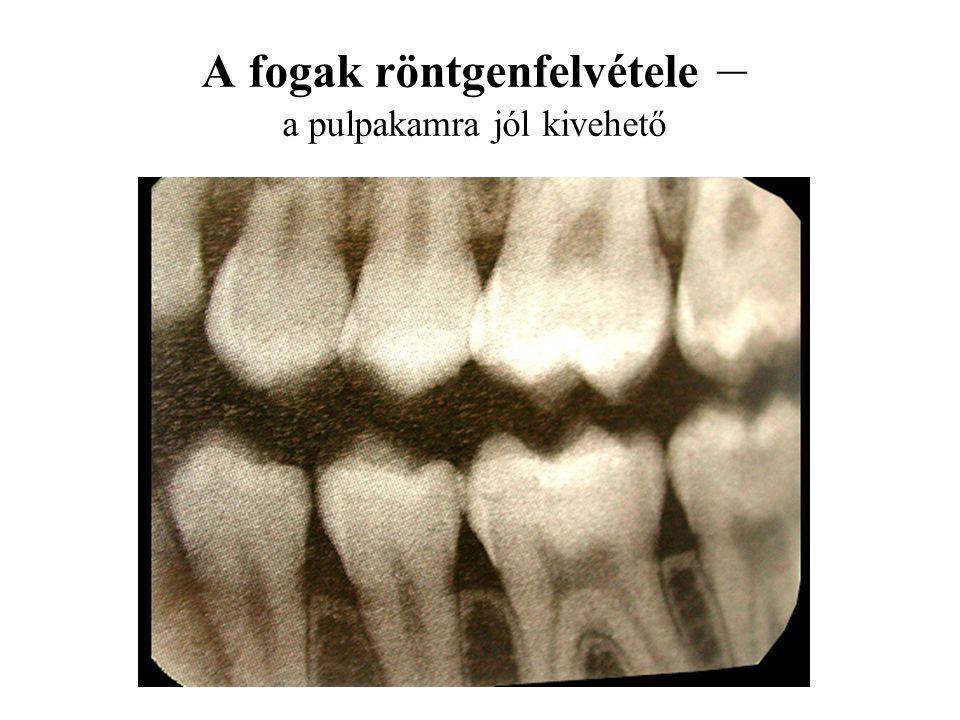 A fogak röntgenfelvétele – a pulpakamra jól kivehető
