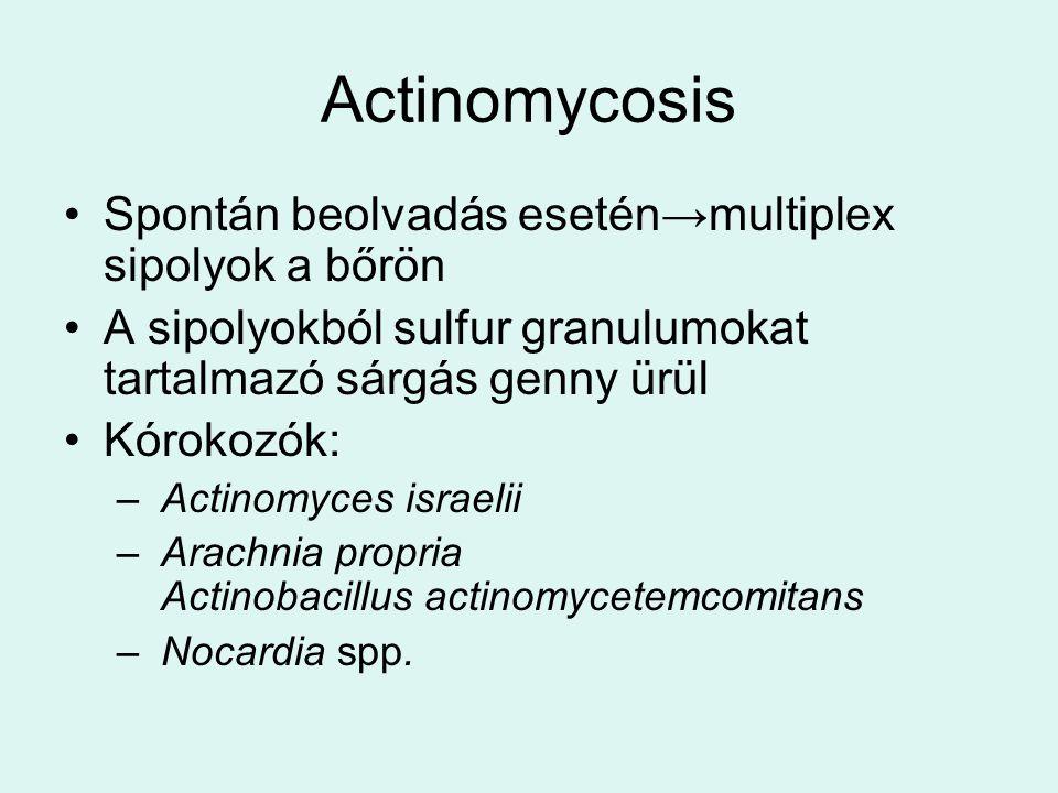 Actinomycosis Spontán beolvadás esetén→multiplex sipolyok a bőrön A sipolyokból sulfur granulumokat tartalmazó sárgás genny ürül Kórokozók: – Actinomyces israelii – Arachnia propria Actinobacillus actinomycetemcomitans – Nocardia spp.