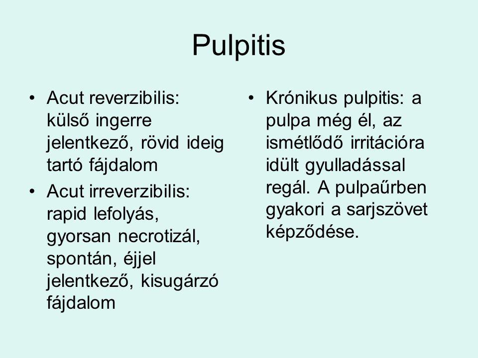 Pulpitis Acut reverzibilis: külső ingerre jelentkező, rövid ideig tartó fájdalom Acut irreverzibilis: rapid lefolyás, gyorsan necrotizál, spontán, éjjel jelentkező, kisugárzó fájdalom Krónikus pulpitis: a pulpa még él, az ismétlődő irritációra idült gyulladással regál.