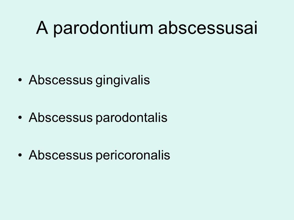 A parodontium abscessusai Abscessus gingivalis Abscessus parodontalis Abscessus pericoronalis