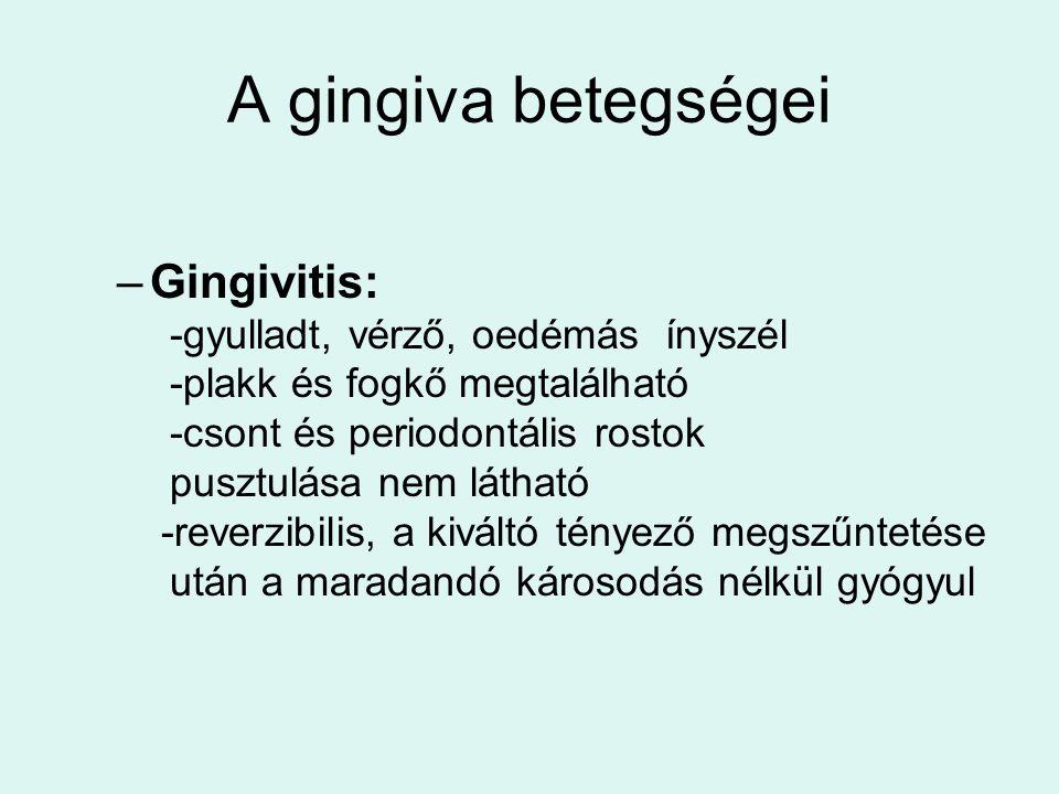 A gingiva betegségei –Gingivitis: -gyulladt, vérző, oedémás ínyszél -plakk és fogkő megtalálható -csont és periodontális rostok pusztulása nem látható -reverzibilis, a kiváltó tényező megszűntetése után a maradandó károsodás nélkül gyógyul