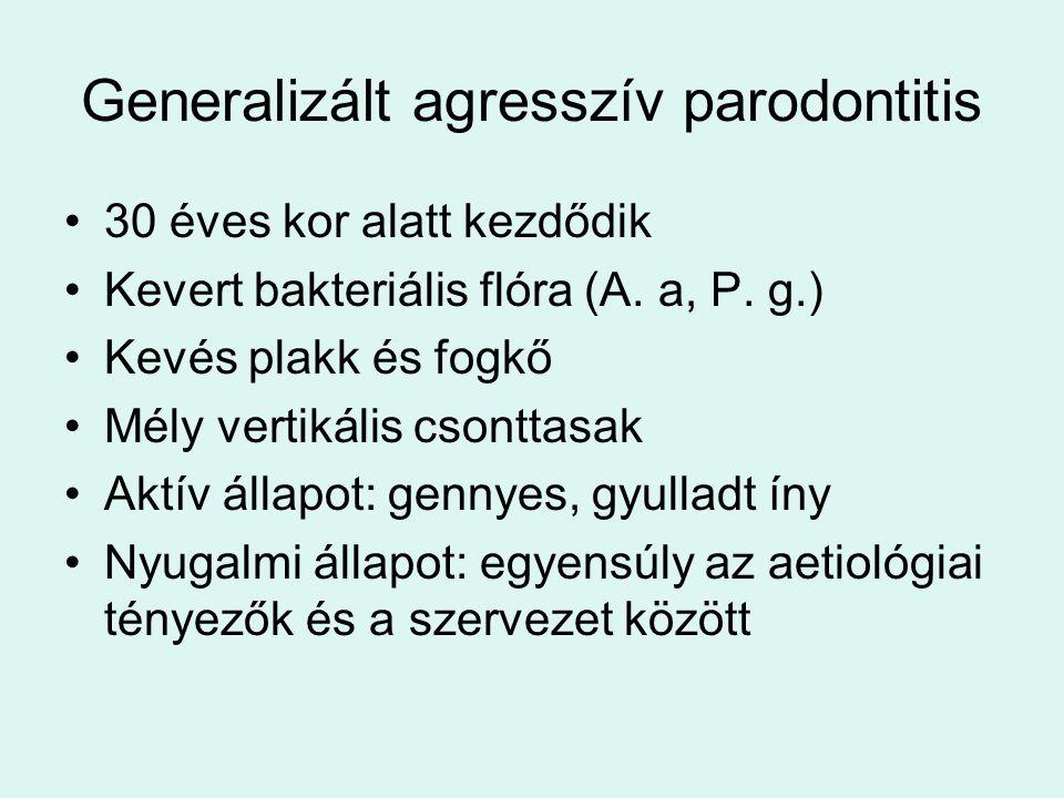 Generalizált agresszív parodontitis 30 éves kor alatt kezdődik Kevert bakteriális flóra (A.