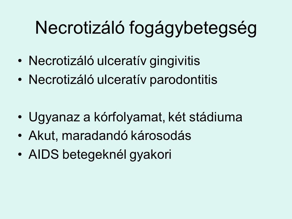 Necrotizáló fogágybetegség Necrotizáló ulceratív gingivitis Necrotizáló ulceratív parodontitis Ugyanaz a kórfolyamat, két stádiuma Akut, maradandó károsodás AIDS betegeknél gyakori