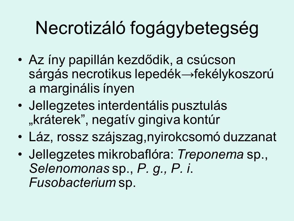 """Necrotizáló fogágybetegség Az íny papillán kezdődik, a csúcson sárgás necrotikus lepedék→fekélykoszorú a marginális ínyen Jellegzetes interdentális pusztulás """"kráterek , negatív gingiva kontúr Láz, rossz szájszag,nyirokcsomó duzzanat Jellegzetes mikrobaflóra: Treponema sp., Selenomonas sp., P."""