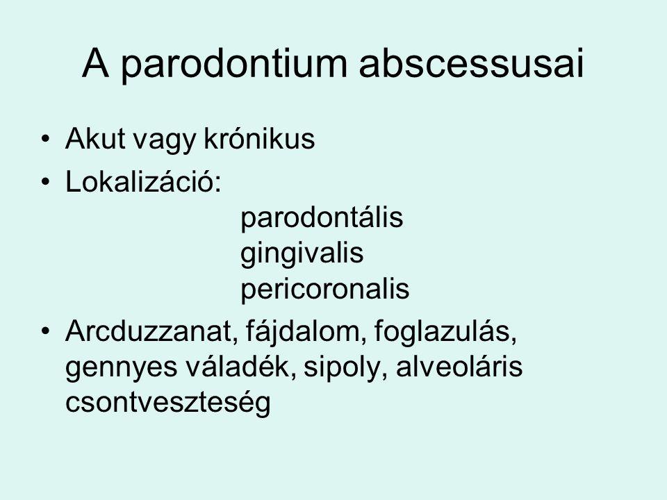 A parodontium abscessusai Akut vagy krónikus Lokalizáció: parodontális gingivalis pericoronalis Arcduzzanat, fájdalom, foglazulás, gennyes váladék, sipoly, alveoláris csontveszteség