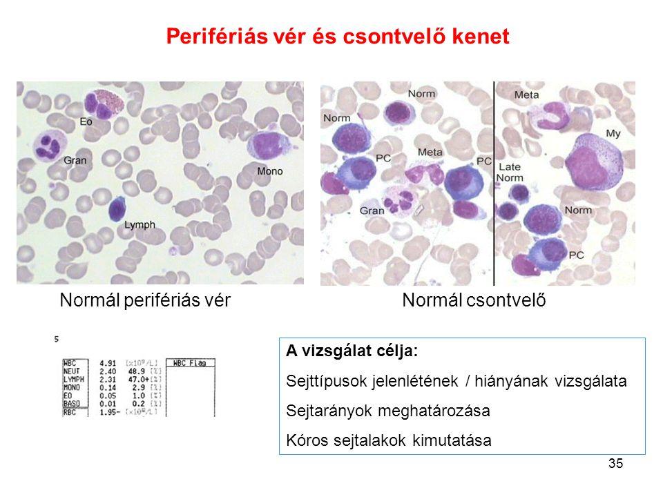 35 Normál perifériás vérNormál csontvelő Perifériás vér és csontvelő kenet A vizsgálat célja: Sejttípusok jelenlétének / hiányának vizsgálata Sejtarán