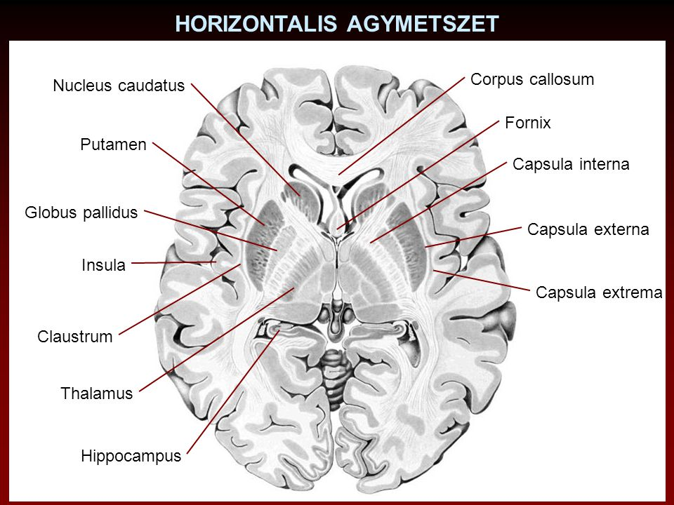 HORIZONTALIS AGYMETSZET Nucleus caudatus Putamen Globus pallidus Claustrum Corpus callosum Capsula interna Capsula externa Insula Capsula extrema Hipp