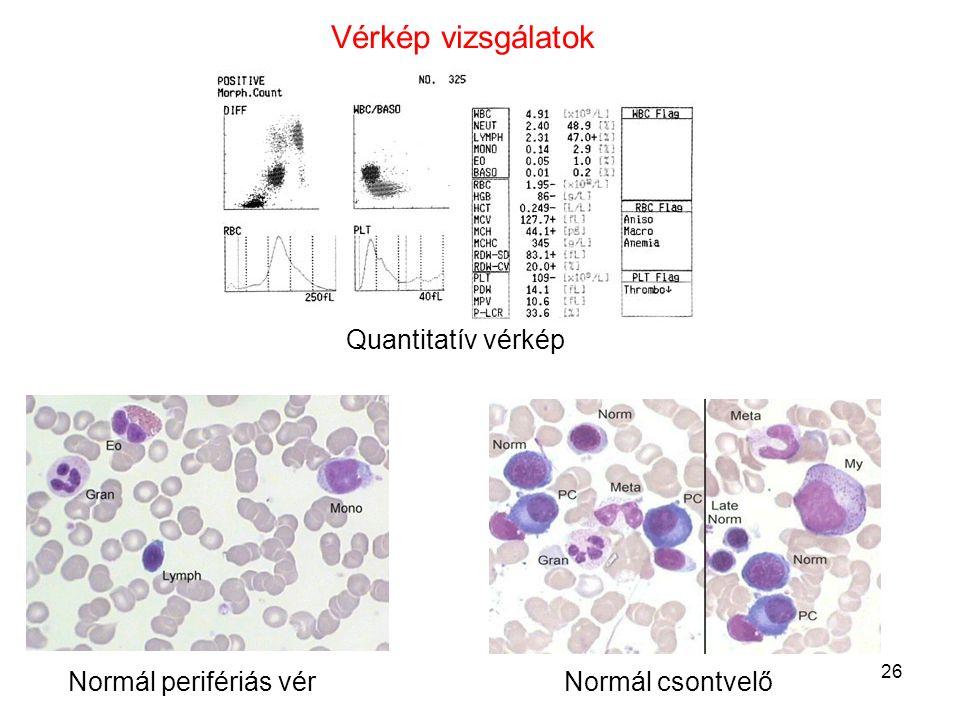 26 Normál perifériás vérNormál csontvelő Vérkép vizsgálatok Quantitatív vérkép