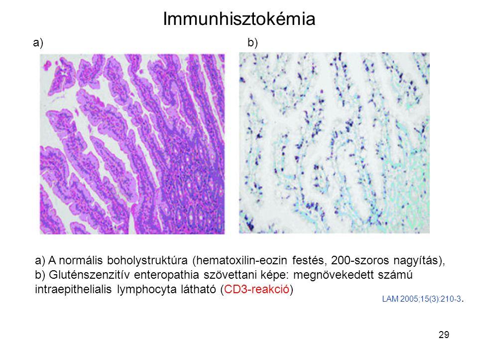 29 Immunhisztokémia a) A normális boholystruktúra (hematoxilin-eozin festés, 200-szoros nagyítás), b) Gluténszenzitív enteropathia szövettani képe: me