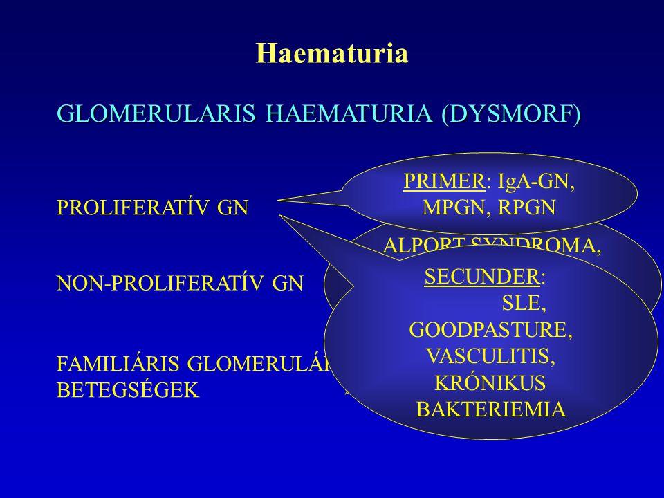 Haematuria GLOMERULARIS HAEMATURIA (DYSMORF) PROLIFERATÍV GN NON-PROLIFERATÍV GN FAMILIÁRIS GLOMERULÁRIS BETEGSÉGEK MCNS, FGS, MEMBRANOSUS NEPHROPATHIA ALPORT-SYNDROMA, FABRY-BETEGSÉG, KÖRÖM-PATELLA SYNDROMA PRIMER: IgA-GN, MPGN, RPGN SECUNDER: SLE, GOODPASTURE, VASCULITIS, KRÓNIKUS BAKTERIEMIA