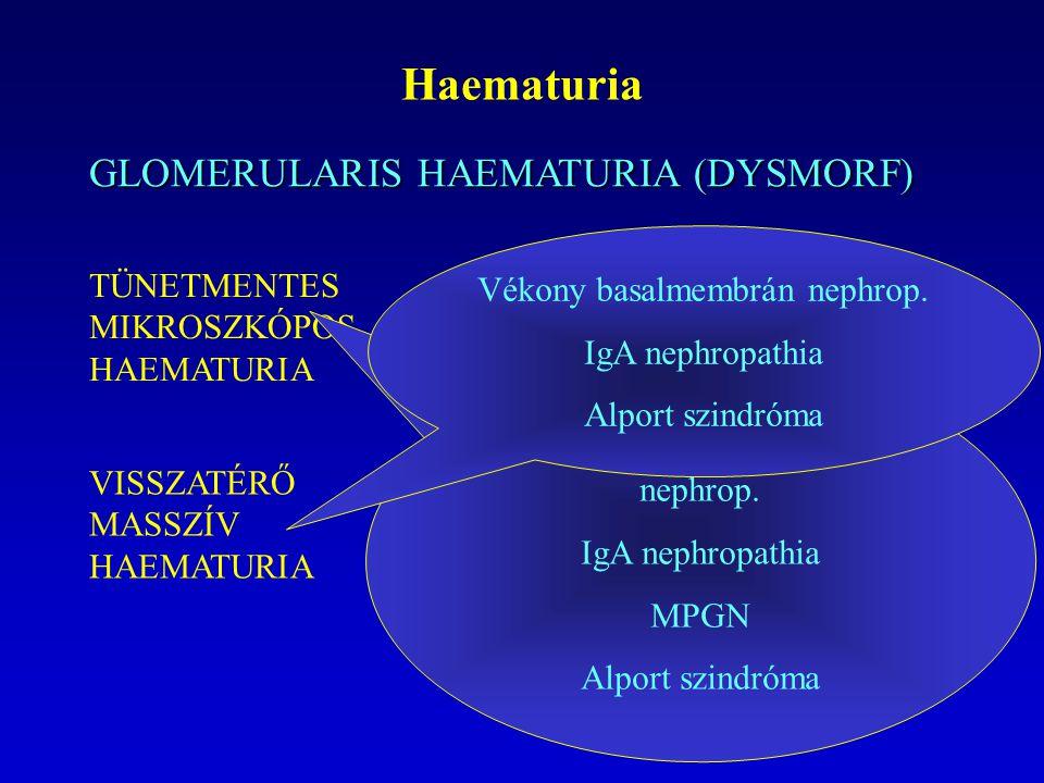 Haematuria TÜNETMENTES MIKROSZKÓPOS HAEMATURIA VISSZATÉRŐ MASSZÍV HAEMATURIA Vékony basalmembrán nephrop. IgA nephropathia MPGN Alport szindróma Vékon
