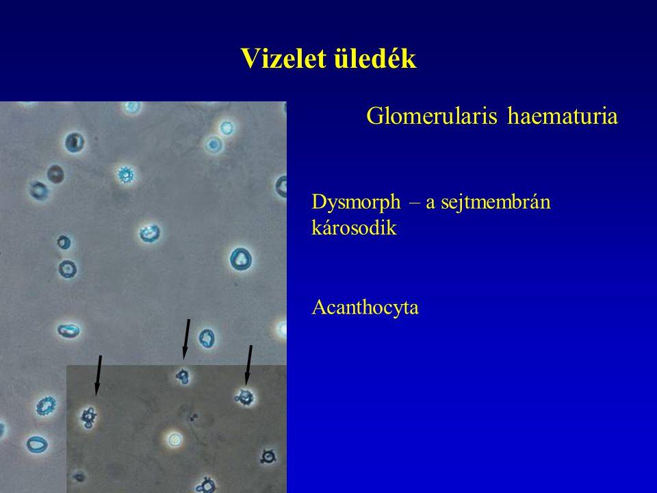 Vizelet üledék Glomerularis haematuria Dysmorph – a sejtmembrán károsodik Acanthocyta