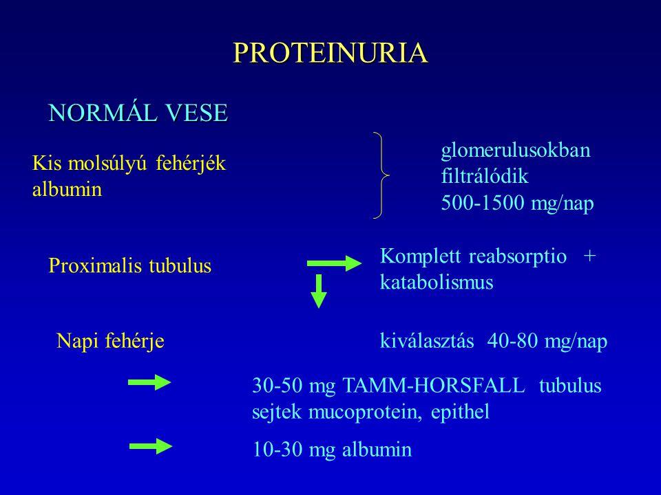 PROTEINURIA NORMÁL VESE Kis molsúlyú fehérjék albumin glomerulusokban filtrálódik 500-1500 mg/nap Proximalis tubulus Komplett reabsorptio + katabolismus Napi fehérjekiválasztás 40-80 mg/nap 30-50 mg TAMM-HORSFALL tubulus sejtek mucoprotein, epithel 10-30 mg albumin