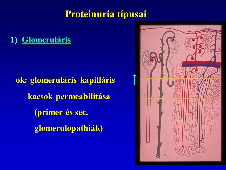 Proteinuria típusai 1) Glomeruláris ok: glomeruláris kapilláris ok: glomeruláris kapilláris kacsok permeabilitása kacsok permeabilitása (primer és sec