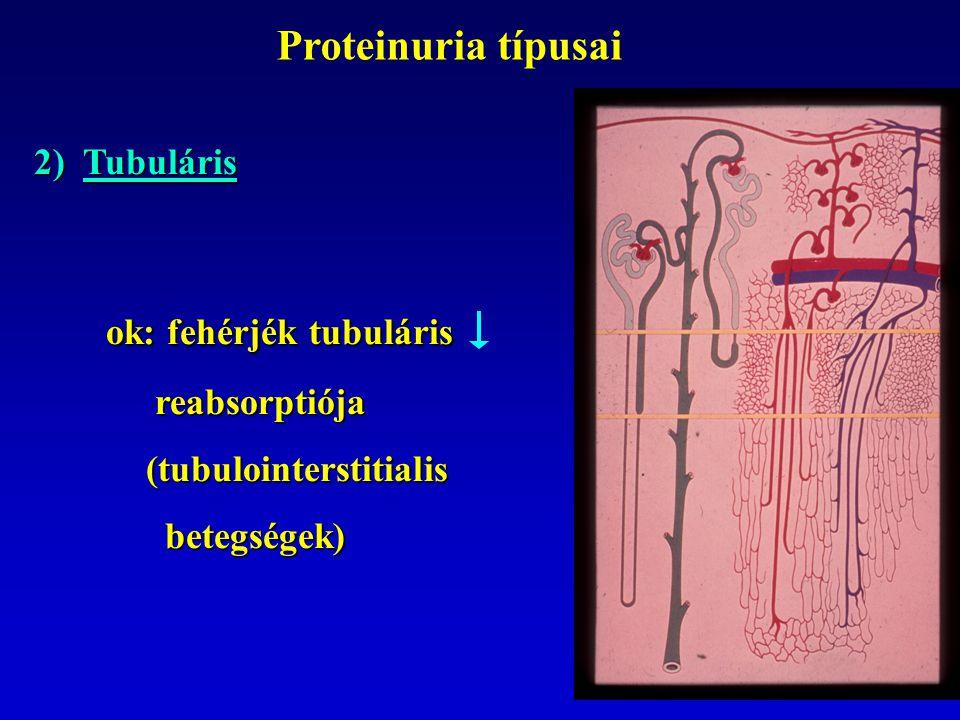 Proteinuria típusai 2) Tubuláris ok: fehérjék tubuláris ok: fehérjék tubuláris reabsorptiója reabsorptiója (tubulointerstitialis (tubulointerstitialis betegségek) betegségek)