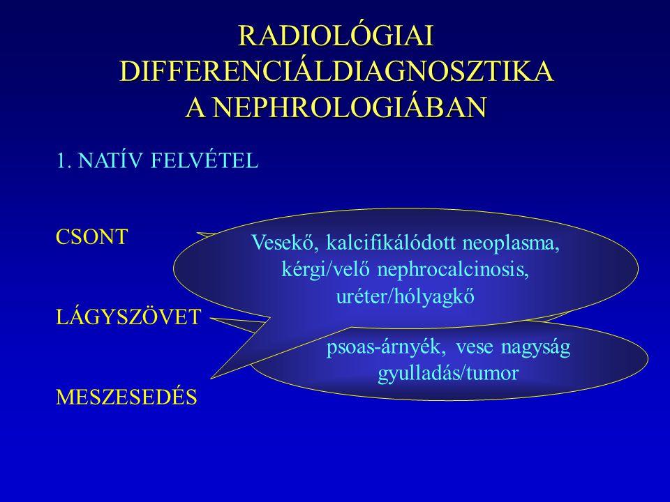 RADIOLÓGIAI DIFFERENCIÁLDIAGNOSZTIKA A NEPHROLOGIÁBAN 1. NATÍV FELVÉTEL CSONT LÁGYSZÖVET MESZESEDÉS Renalis osteodystrophia lythikus és blastos metast