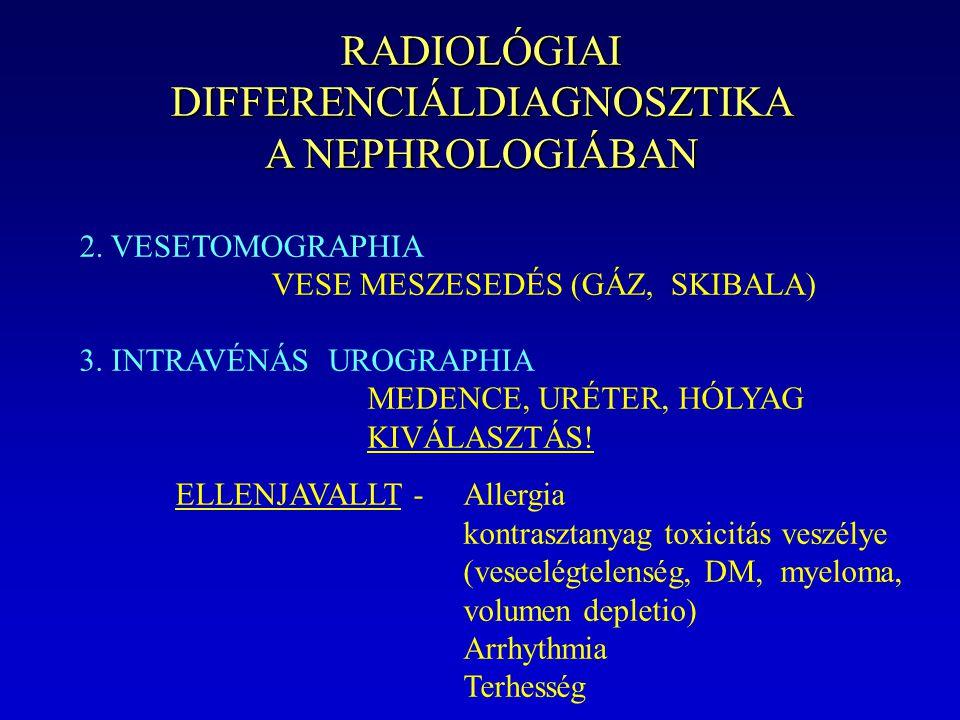 RADIOLÓGIAI DIFFERENCIÁLDIAGNOSZTIKA A NEPHROLOGIÁBAN 2. VESETOMOGRAPHIA VESE MESZESEDÉS (GÁZ, SKIBALA) 3. INTRAVÉNÁS UROGRAPHIA MEDENCE, URÉTER, HÓLY
