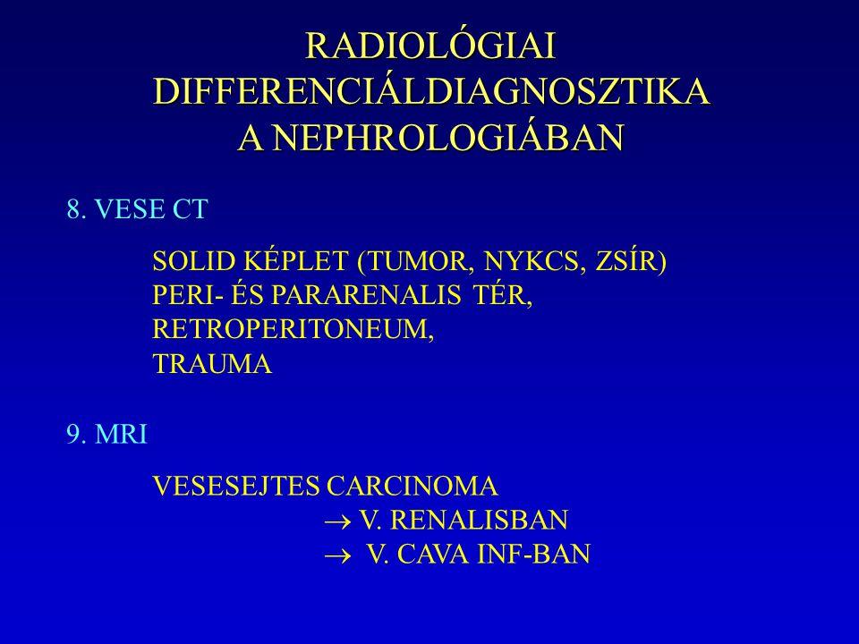 RADIOLÓGIAI DIFFERENCIÁLDIAGNOSZTIKA A NEPHROLOGIÁBAN 8. VESE CT SOLID KÉPLET (TUMOR, NYKCS, ZSÍR) PERI- ÉS PARARENALIS TÉR, RETROPERITONEUM, TRAUMA 9
