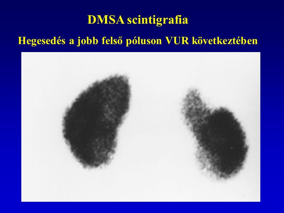 DMSA scintigrafia Hegesedés a jobb felső póluson VUR következtében
