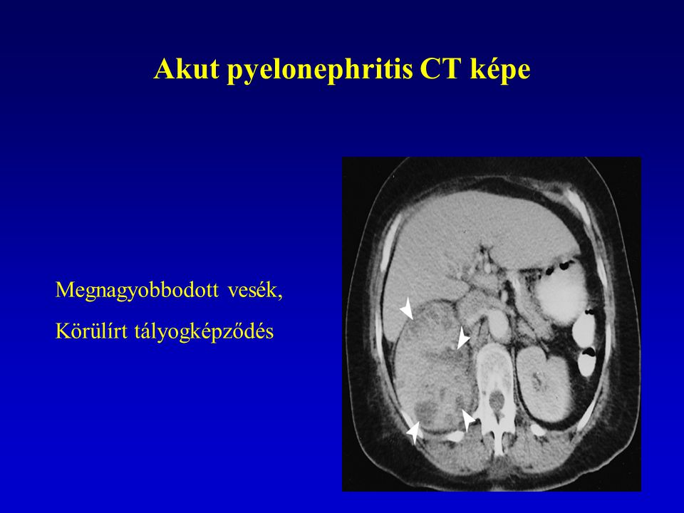82 Akut pyelonephritis CT képe Megnagyobbodott vesék, Körülírt tályogképződés
