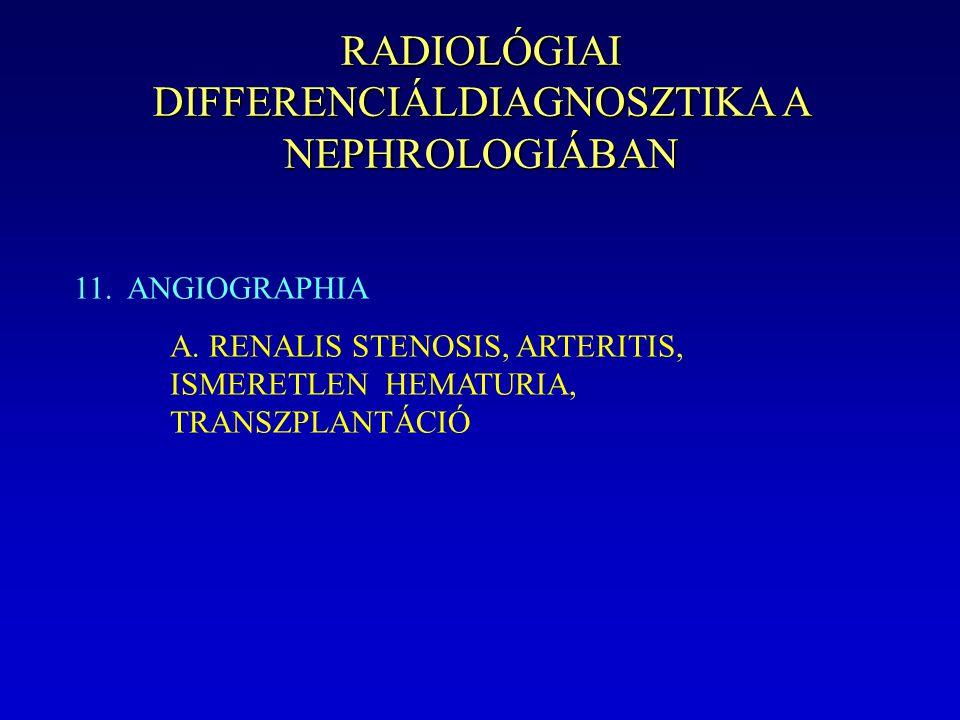 RADIOLÓGIAI DIFFERENCIÁLDIAGNOSZTIKA A NEPHROLOGIÁBAN 11. ANGIOGRAPHIA A. RENALIS STENOSIS, ARTERITIS, ISMERETLEN HEMATURIA, TRANSZPLANTÁCIÓ