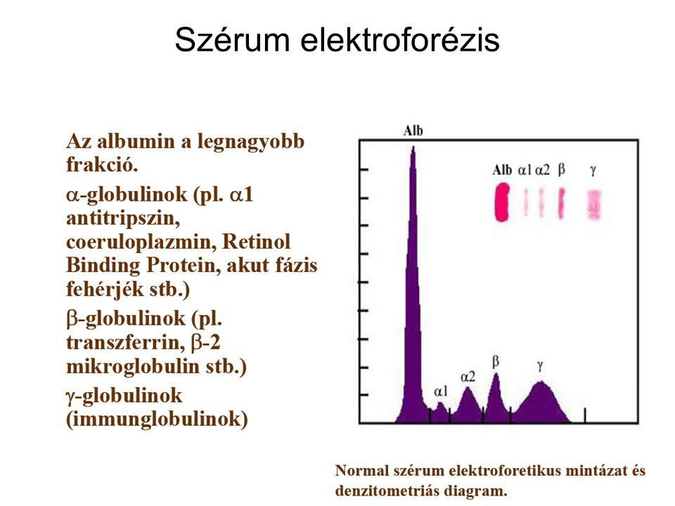 16 Gamma-globulinok relatív túlsúlya Poliklonális gammopátiák esetében a gamma-globulinok relatív arány megnövekszik, kiemelkedő hegyes csúcs (M-spike) nélkül.