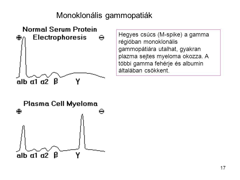 17 Hegyes csúcs (M-spike) a gamma régióban monoklonális gammopátiára utalhat, gyakran plazma sejtes myeloma okozza. A többi gamma fehérje és albumin á