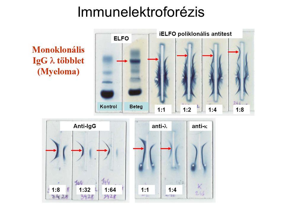 23 Immunelektroforézis KontrolBeteg