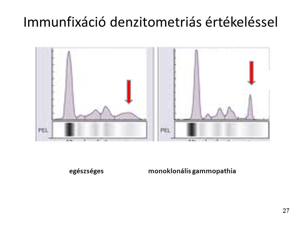 28 Turbidimetria és nefelometria Turbidimetria: (érzékenység: 50 µg/ml) szérumban, liquorban nagy mennyiségben jelen lévő fehérjék vizsgálata.