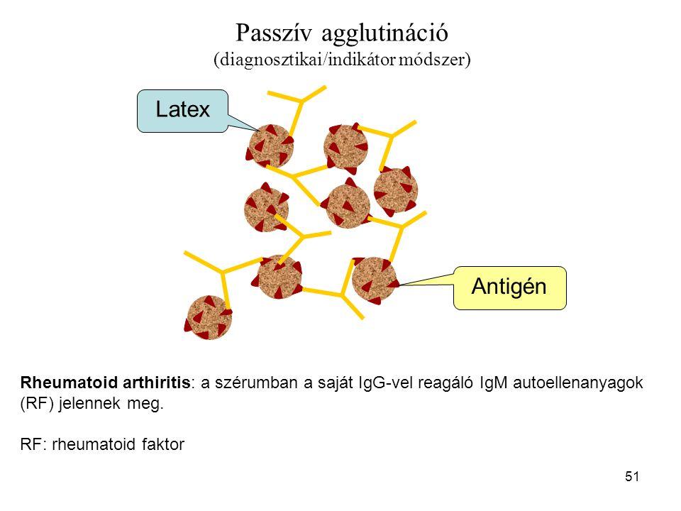 51 Passzív agglutináció (diagnosztikai/indikátor módszer) Rheumatoid arthiritis: a szérumban a saját IgG-vel reagáló IgM autoellenanyagok (RF) jelenne