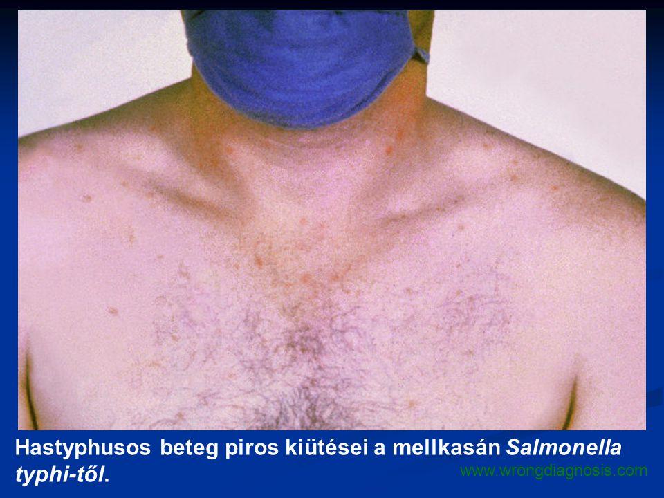 Hastyphusos beteg piros kiütései a mellkasán Salmonella typhi-től. www.wrongdiagnosis.com