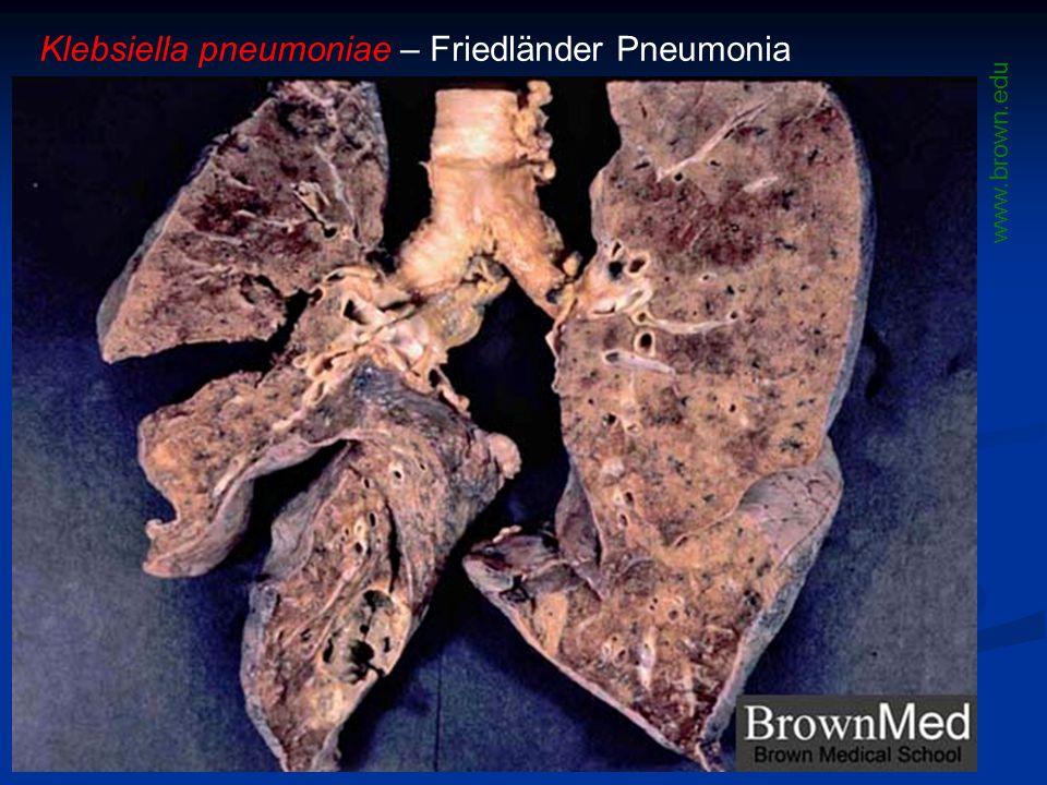 Klebsiella pneumoniae – Friedländer Pneumonia www.brown.edu