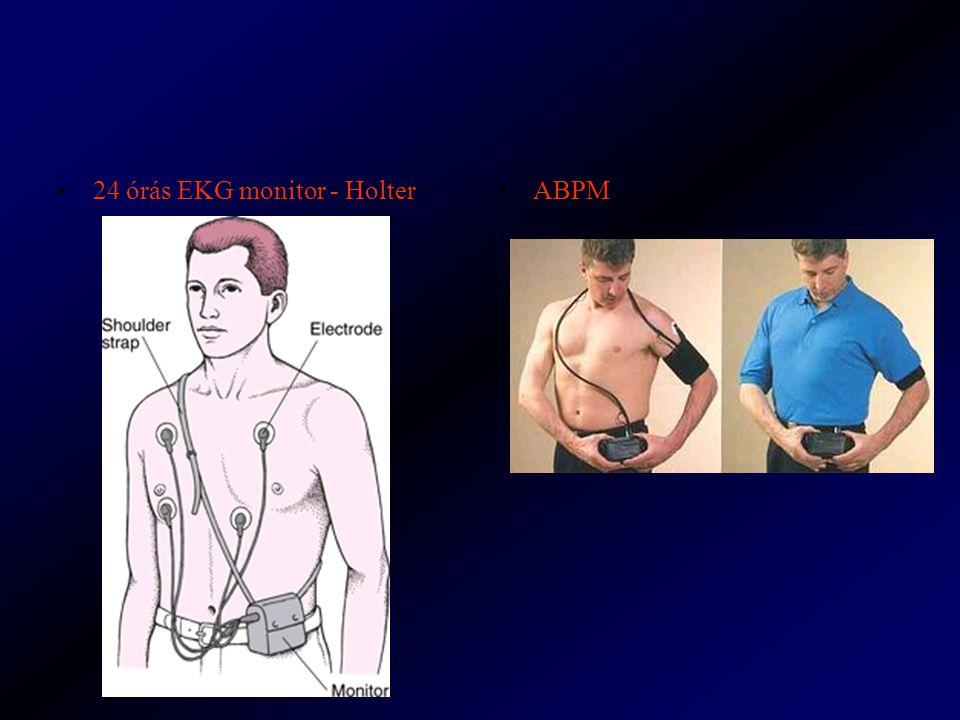 24 órás EKG monitor - HolterABPM