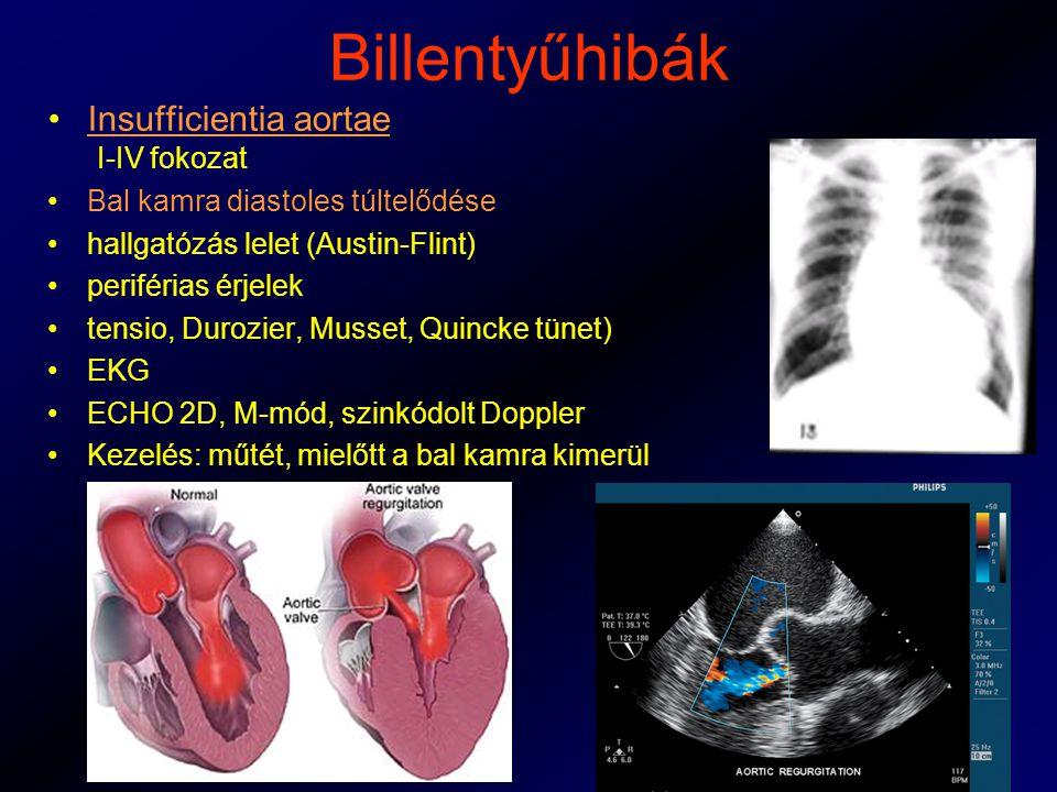 Billentyűhibák Insufficientia aortae I-IV fokozat Bal kamra diastoles túltelődése hallgatózás lelet (Austin-Flint) periférias érjelek tensio, Durozier, Musset, Quincke tünet) EKG ECHO 2D, M-mód, szinkódolt Doppler Kezelés: műtét, mielőtt a bal kamra kimerül