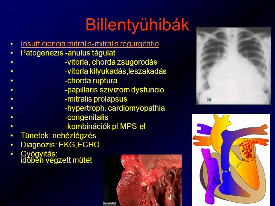 Billentyühibák Insufficiencia mitralis-mitralis regurgitatio Patogenezis -anulus tágulat -vitorla, chorda zsugorodás -vitorla kilyukadás,leszakadás -chorda ruptura -papillaris szivizom dysfuncio -mitralis prolapsus -hypertroph.