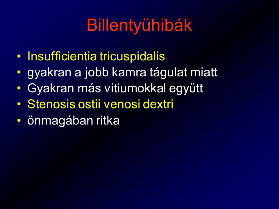 Billentyühibák Insufficientia tricuspidalis gyakran a jobb kamra tágulat miatt Gyakran más vitiumokkal együtt Stenosis ostii venosi dextri önmagában ritka