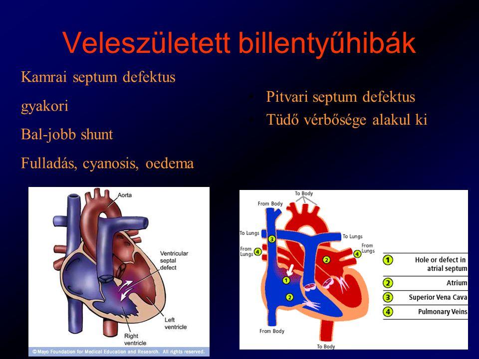 Veleszületett billentyűhibák Kamrai septum defektus gyakori Bal-jobb shunt Fulladás, cyanosis, oedema Pitvari septum defektus Tüdő vérbősége alakul ki