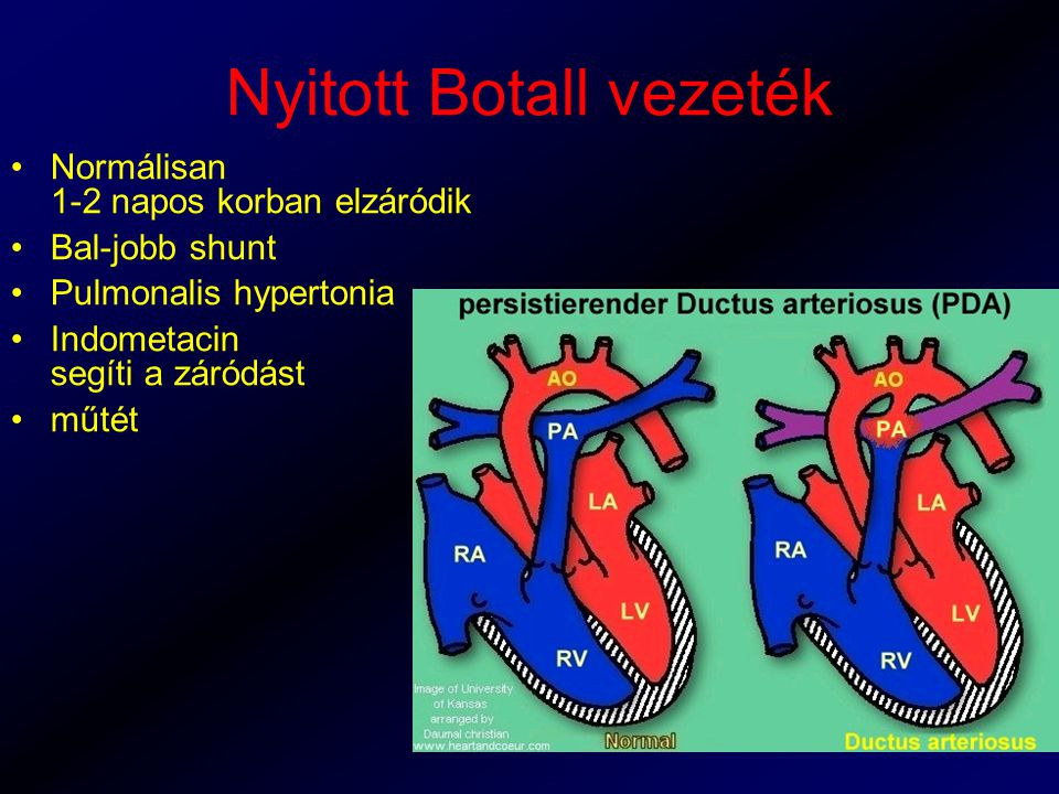 Nyitott Botall vezeték Normálisan 1-2 napos korban elzáródik Bal-jobb shunt Pulmonalis hypertonia Indometacin segíti a záródást műtét
