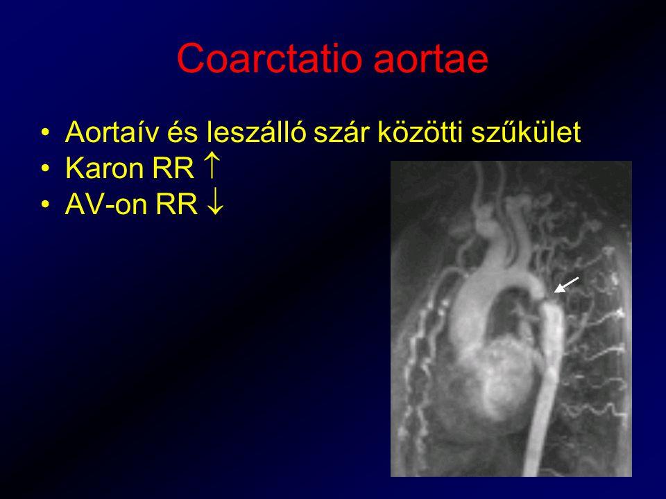 Coarctatio aortae Aortaív és leszálló szár közötti szűkület Karon RR  AV-on RR 