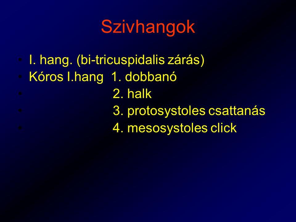 Szivhangok I.hang. (bi-tricuspidalis zárás) Kóros I.hang 1.