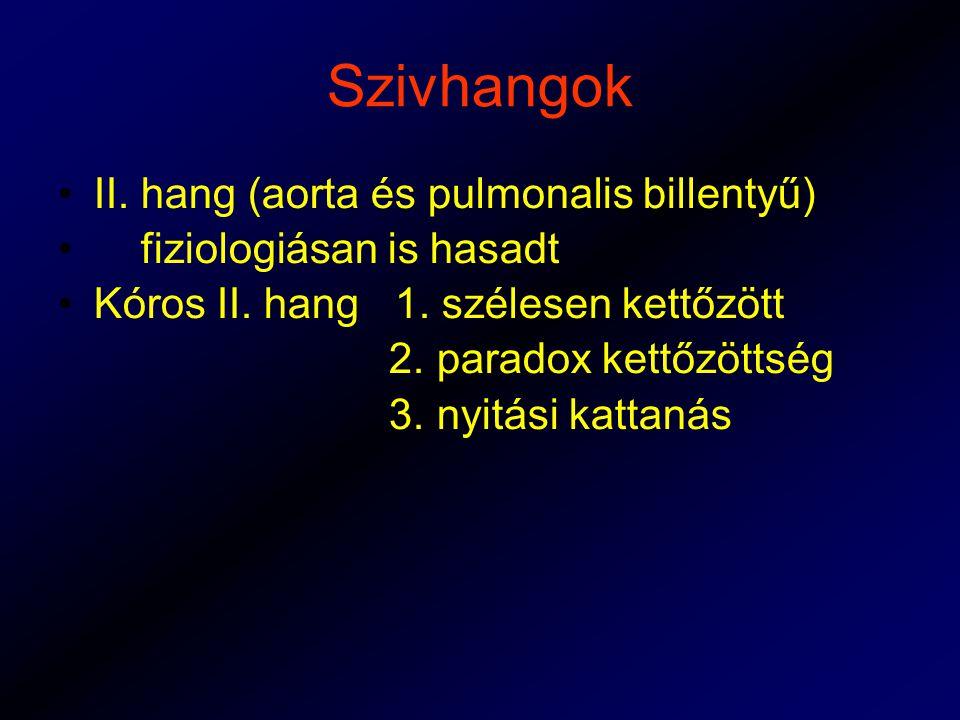 Szivhangok II.hang (aorta és pulmonalis billentyű) fiziologiásan is hasadt Kóros II.