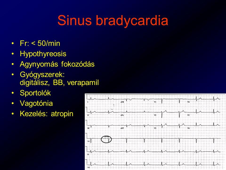 Sinus bradycardia Fr: < 50/min Hypothyreosis Agynyomás fokozódás Gyógyszerek: digitálisz, BB, verapamil Sportolók Vagotónia Kezelés: atropin