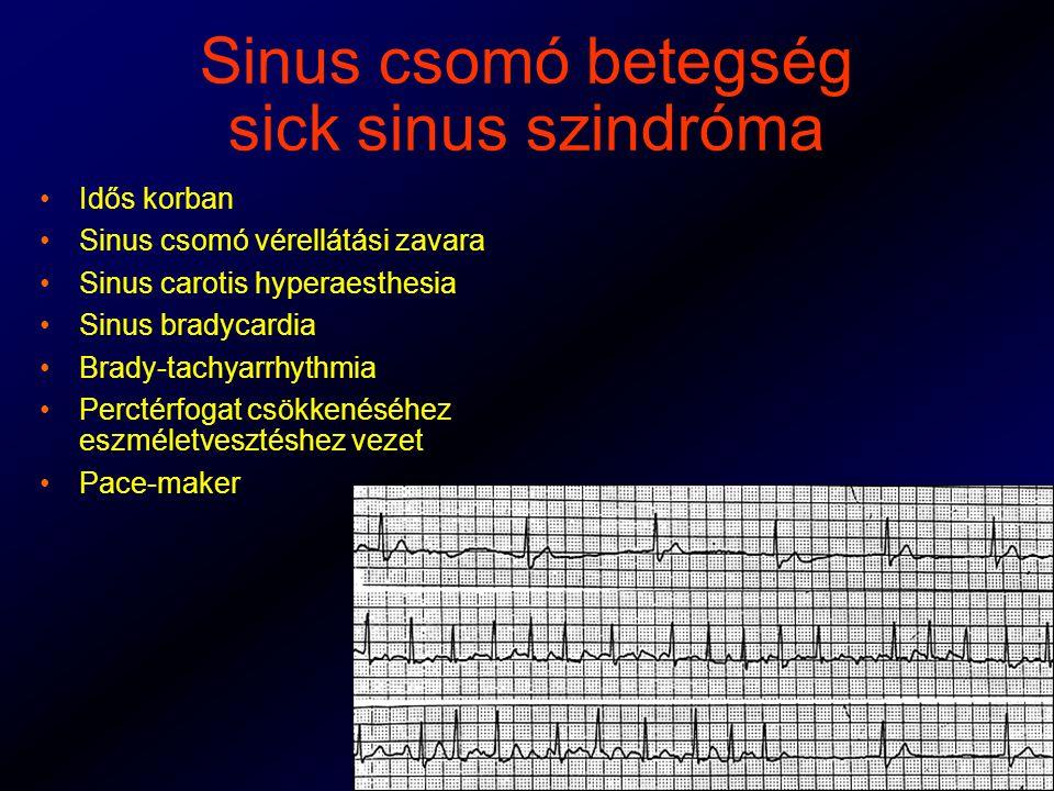Sinus csomó betegség sick sinus szindróma Idős korban Sinus csomó vérellátási zavara Sinus carotis hyperaesthesia Sinus bradycardia Brady-tachyarrhythmia Perctérfogat csökkenéséhez eszméletvesztéshez vezet Pace-maker